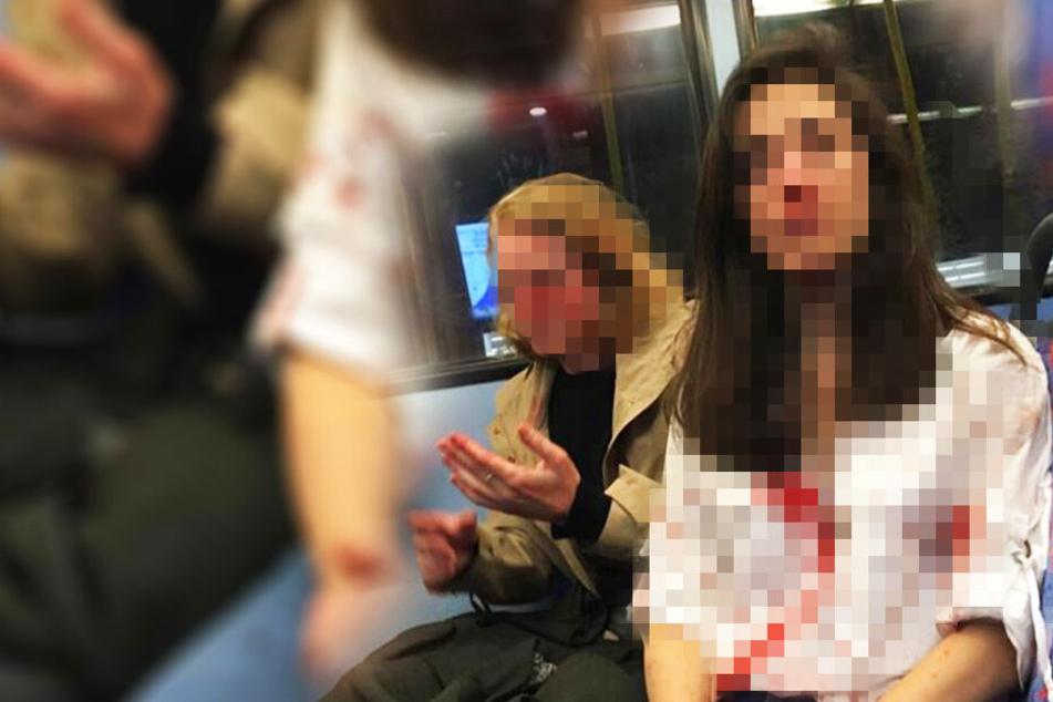 Das lesbische Pärchen wurde Opfer einer brutalen Prügel-Attacke.