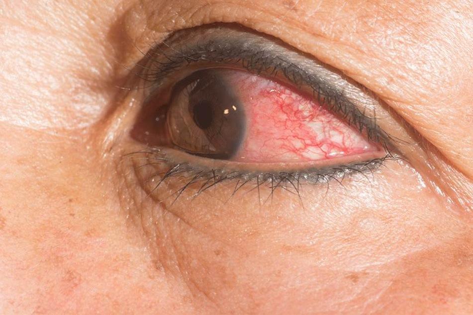 14 Würmer in einem Auge, ein Grauen... (Symbolbild).