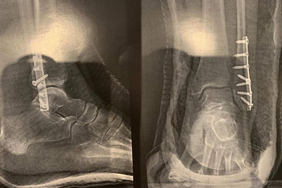 Der gebrochene Fuß von Carmen Geiss wurde mit Metallschrauben verstärkt.