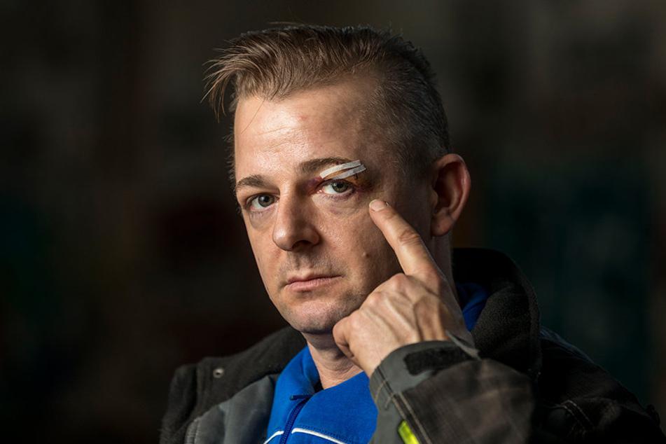 Direktor Sascha Köllner (39) wurde von den Angreifern am Kopf verletzt.