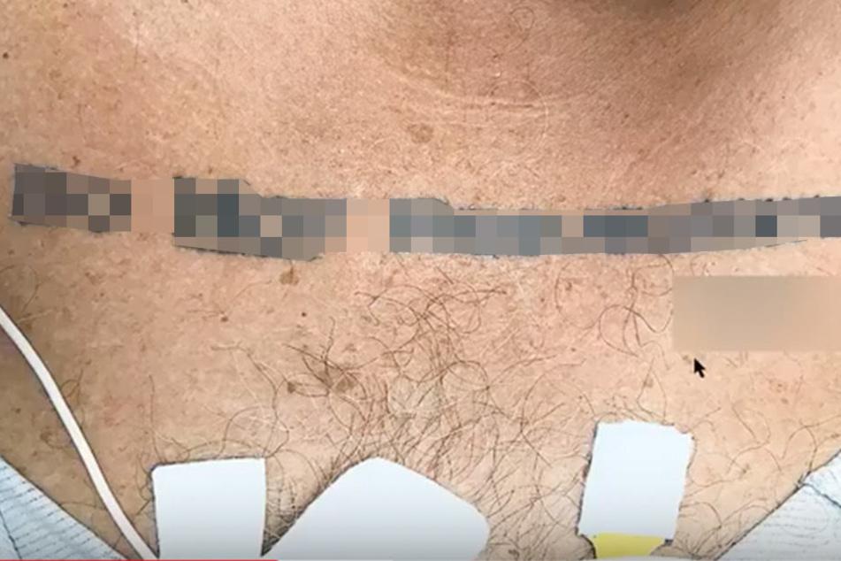 Ärzte wissen nicht, was sie machen sollen, als sie dieses Tattoo sehen