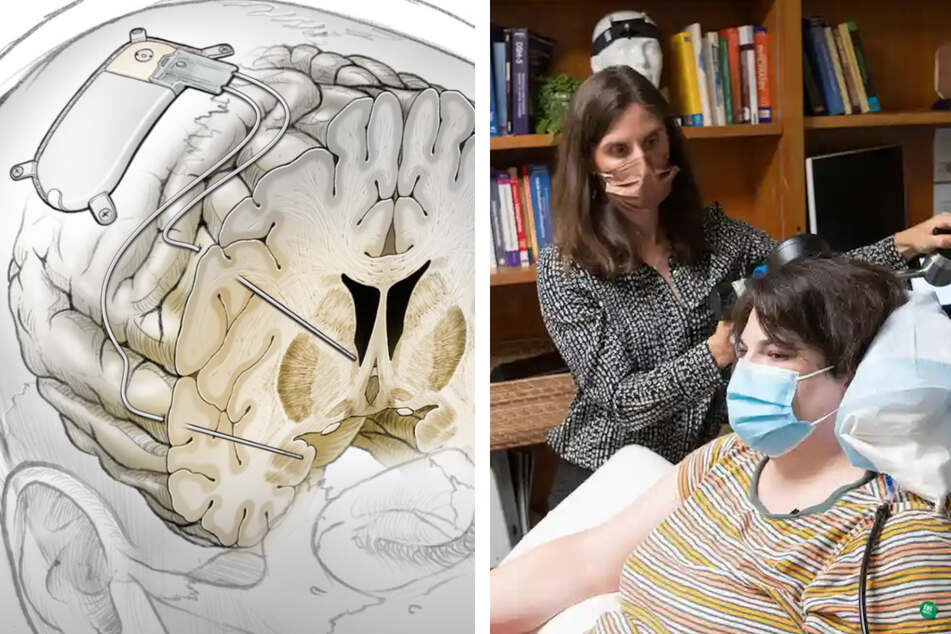 "Unprecedented ""brain pacemaker"" cures severe depression"