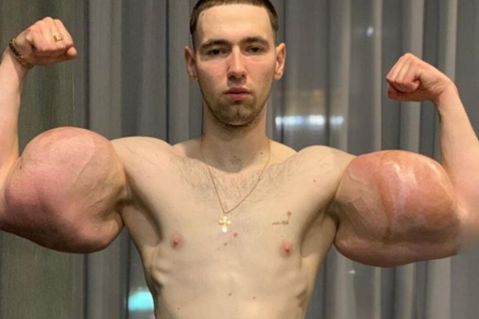 Angst um sein Leben: Möchtegern-Muskelprotz operiert