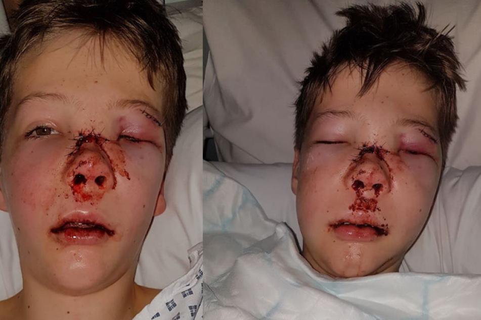 So furchtbar wurde der elfjährige Morgan Davis bei einem Fahrradunfall zugerichtet.