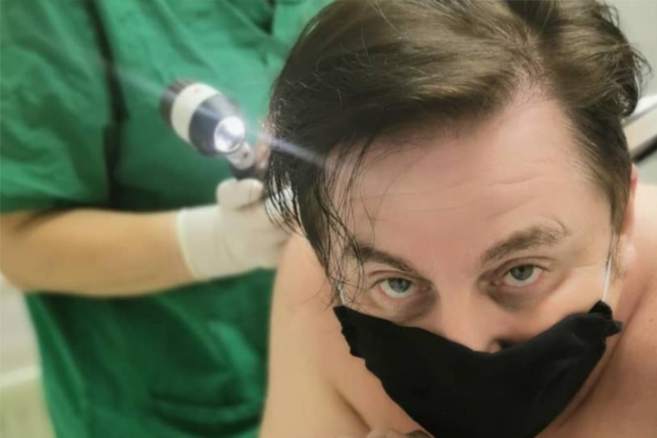 Hautkrebs! TV-Star Uwe Herrmann warnt seine Fans
