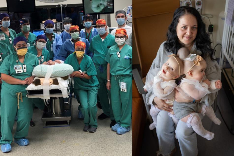 Siamesische Zwillinge müssen 24 Stunden lang operiert werden