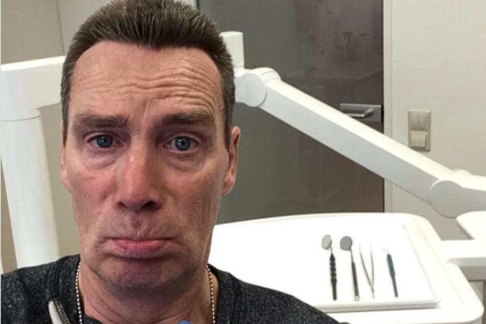 Jürgen Milski (57) hat sich beim Zahnarzt fünf Zähne entfernen lassen!