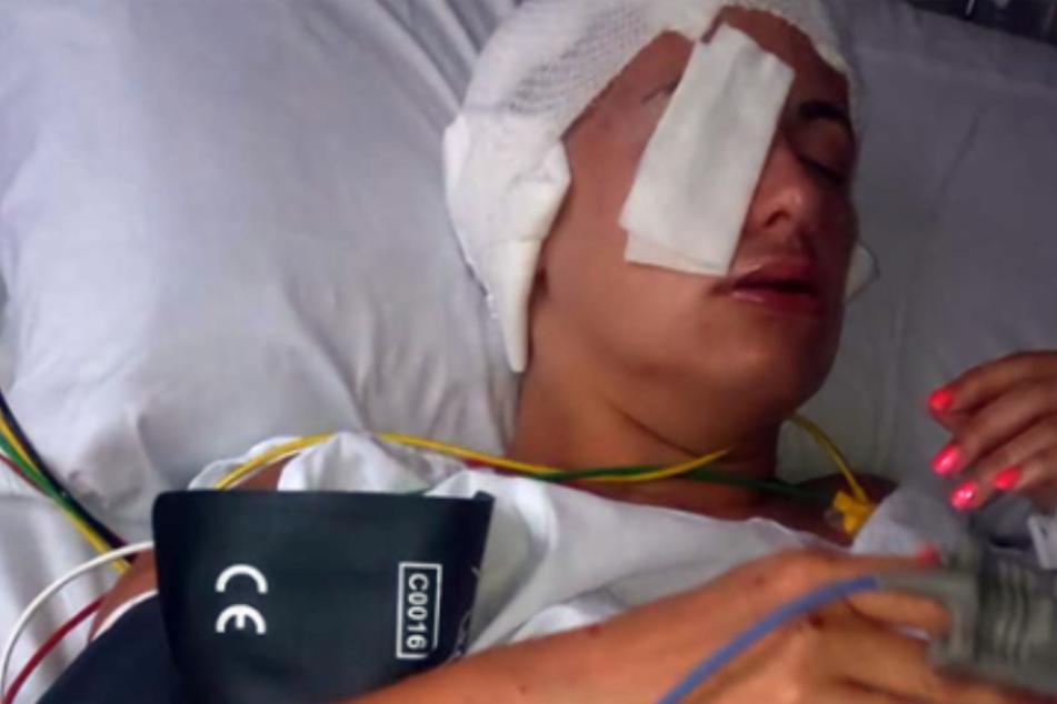 Säure-Attentat eines Stalkers: Täter greift Mutter und fünfjährige Tochter an
