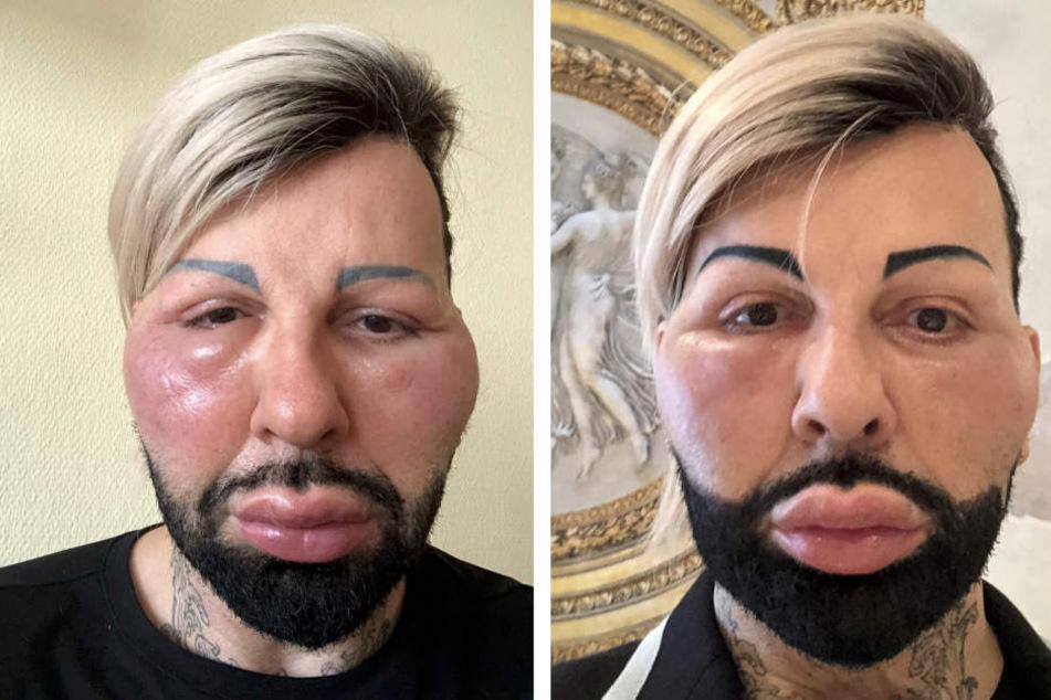 Bereits einen Tag nach seiner allergischen Reaktion hat sich das Gesicht fast wieder normalisiert.