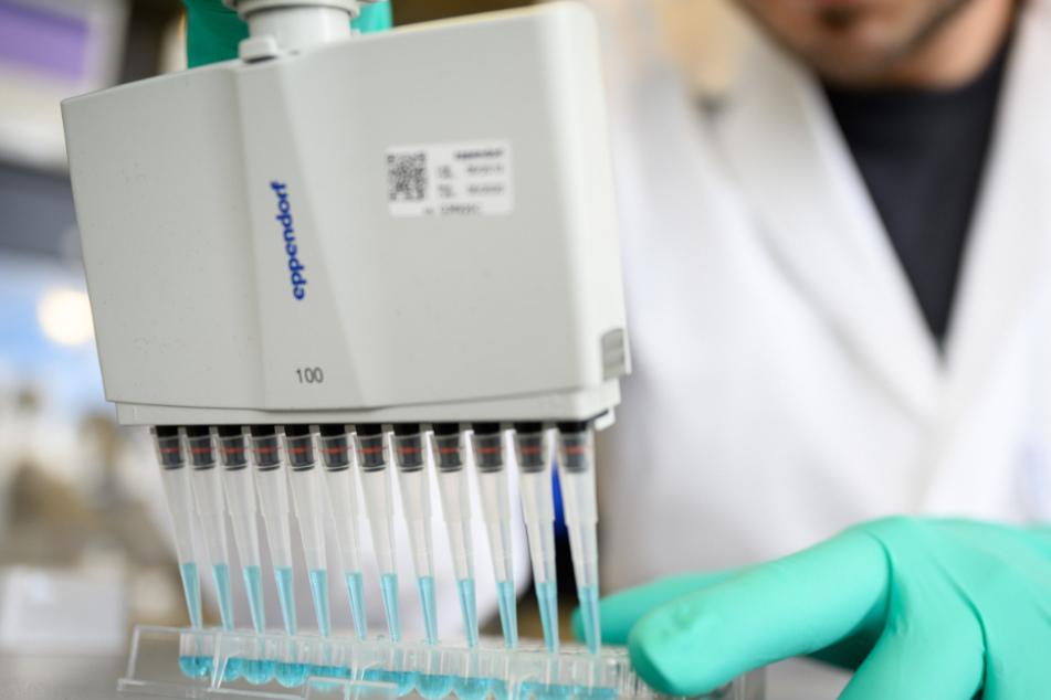 Kapazität der Berliner Corona-Labore zu 95 Prozent ausgeschöpft