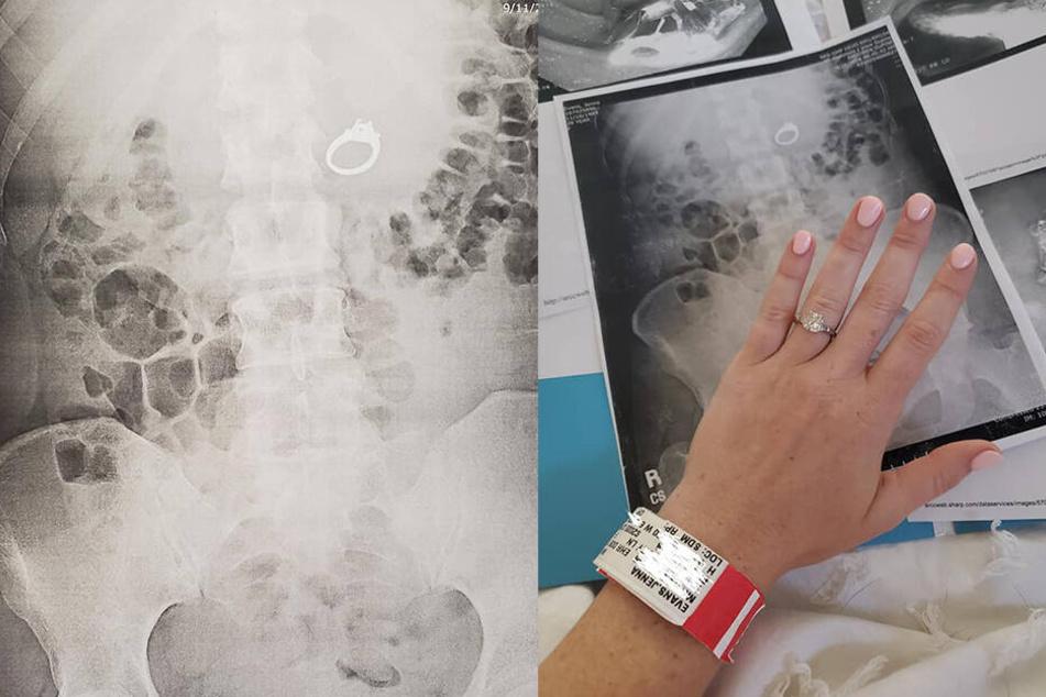 Nachdem ihr der Ring entfernt wurde, bekam sie ihn später von ihrem Verlobten wieder.