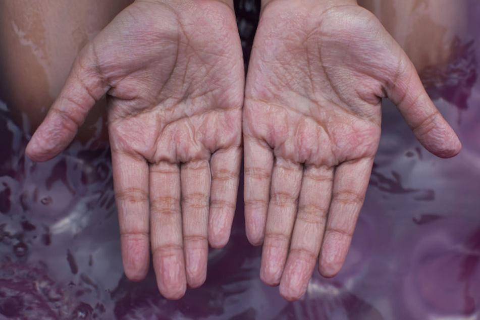 Jetzt wissen wir, warum unsere Hände zum Beispiel nach dem Abwasch so schrumplig werden.