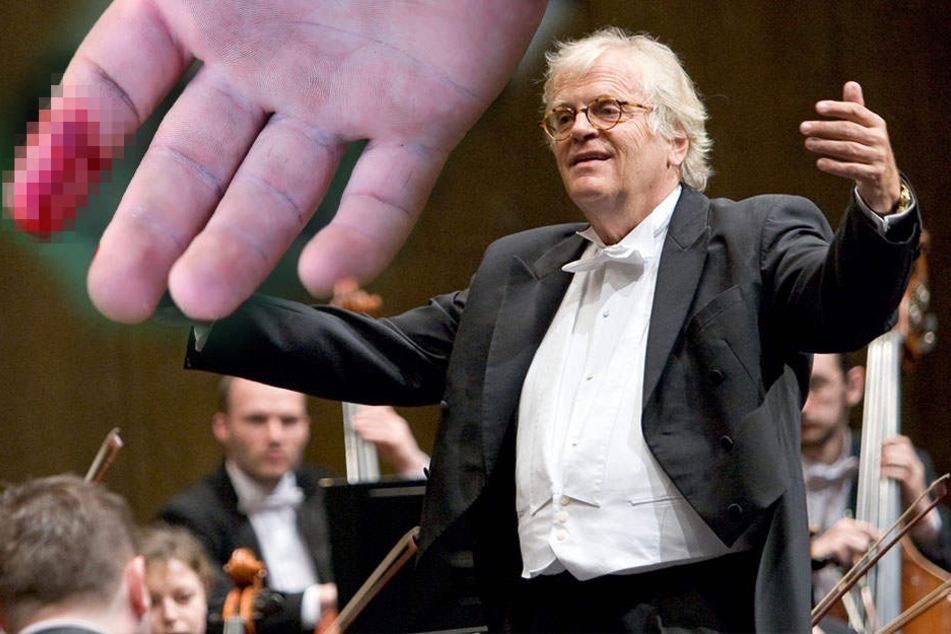 Star-Dirigent verliert bei Horror-Unfall seine Fingerkuppe