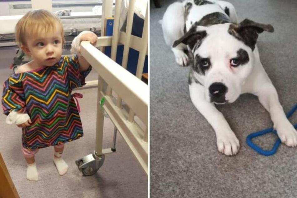 Eigentlich gilt er als verschmust: Hund beißt Baby in den Kopf!