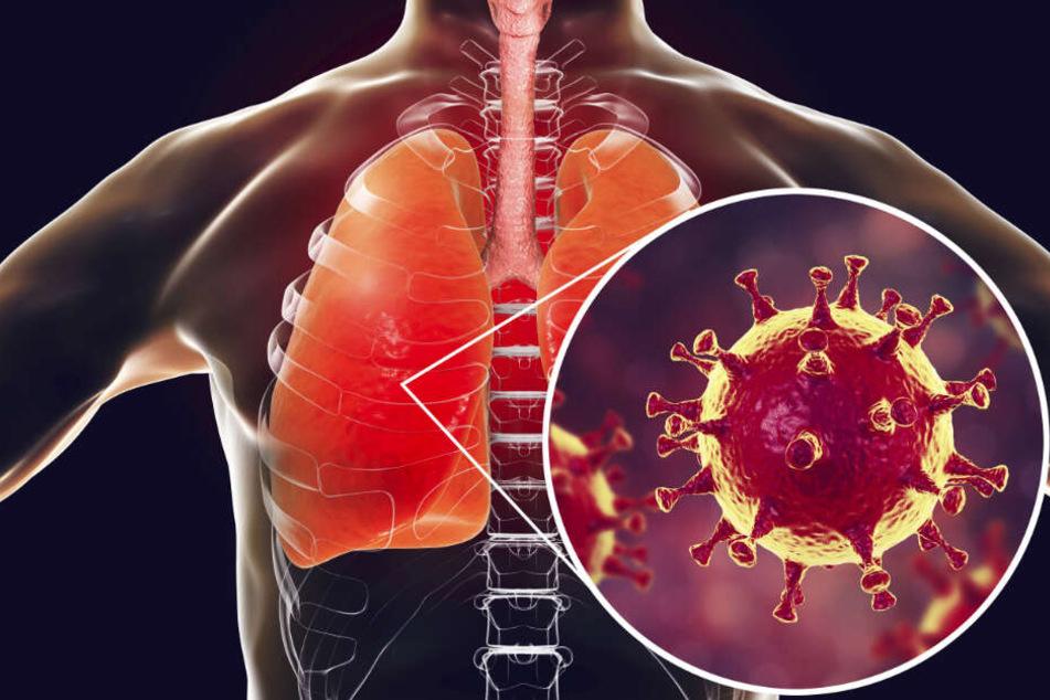 Der Coronavirus hat Deutschland erreicht, die Furcht davor auch Sachsen.