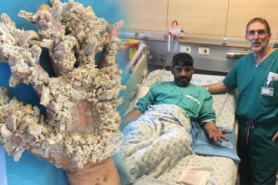Extreme Wucherungen! Mann hat seltene Hauterkrankung an seinen Händen