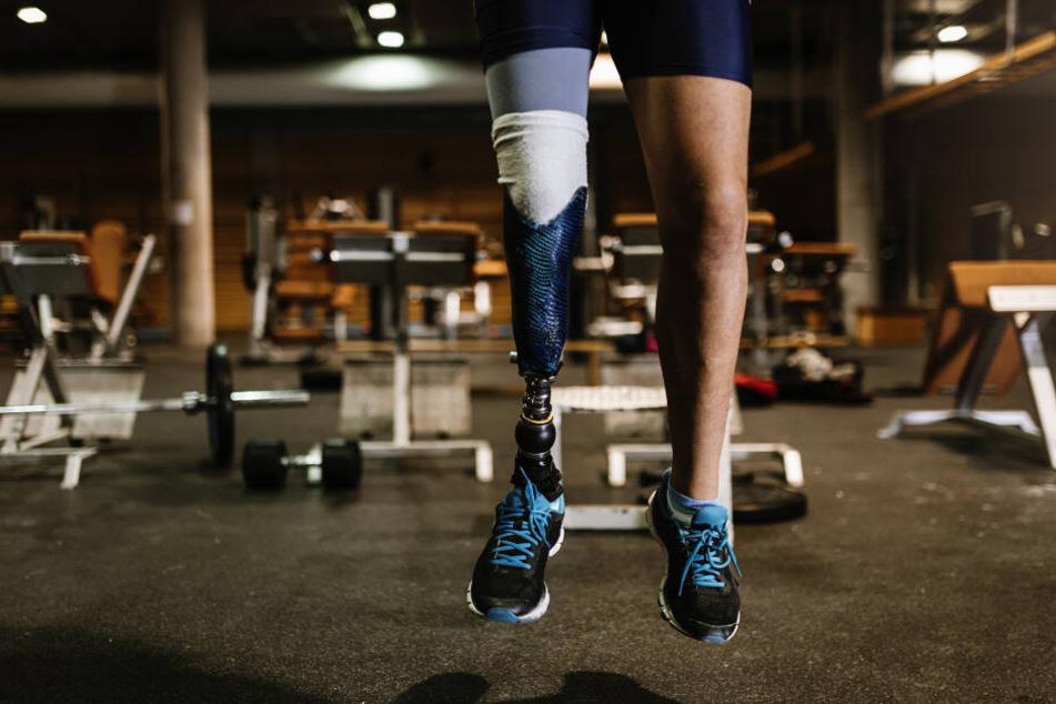 Der 46-Jährigen mussten sogar beide Beine amputiert werden. (Symbolbild)