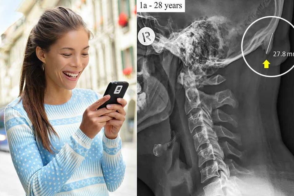 Smartphone schuld? Darum wächst uns Menschen ein neuer Knochen