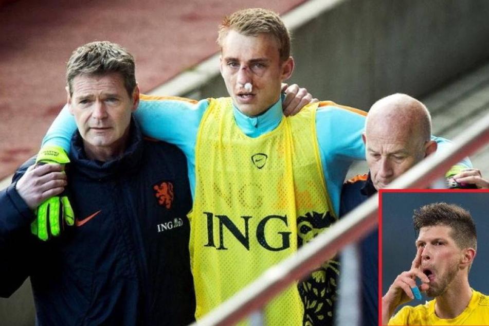 Huntelaar bricht Holland-Keeper die Nase