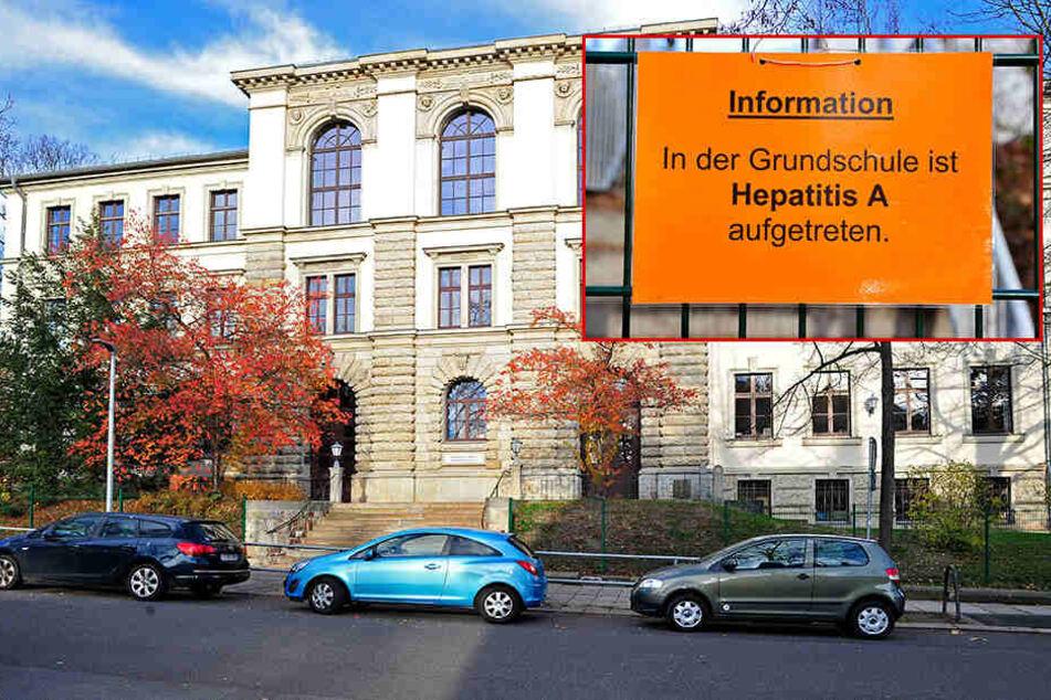 Chemnitz: Kind an Hepatitis A erkrankt: Erst im Dezember wieder normaler Schulbetrieb!