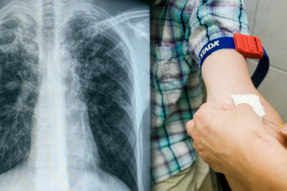Tuberkulose-Fälle an Schule: Über 100 Schüler und Lehrer infiziert