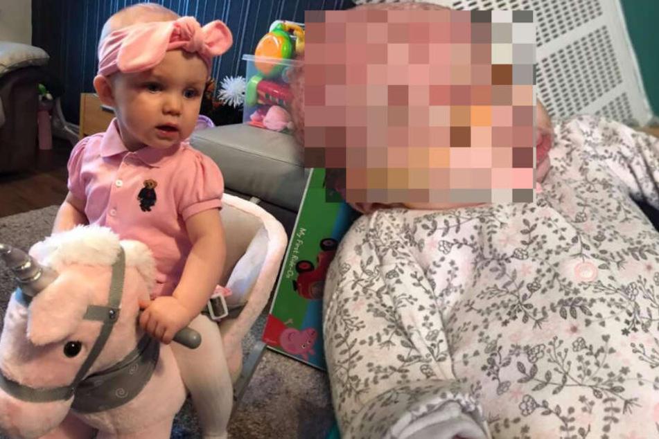 Weil Mutter ihr Baby küsst: Viruserkrankung lässt Säugling beinahe erblinden!
