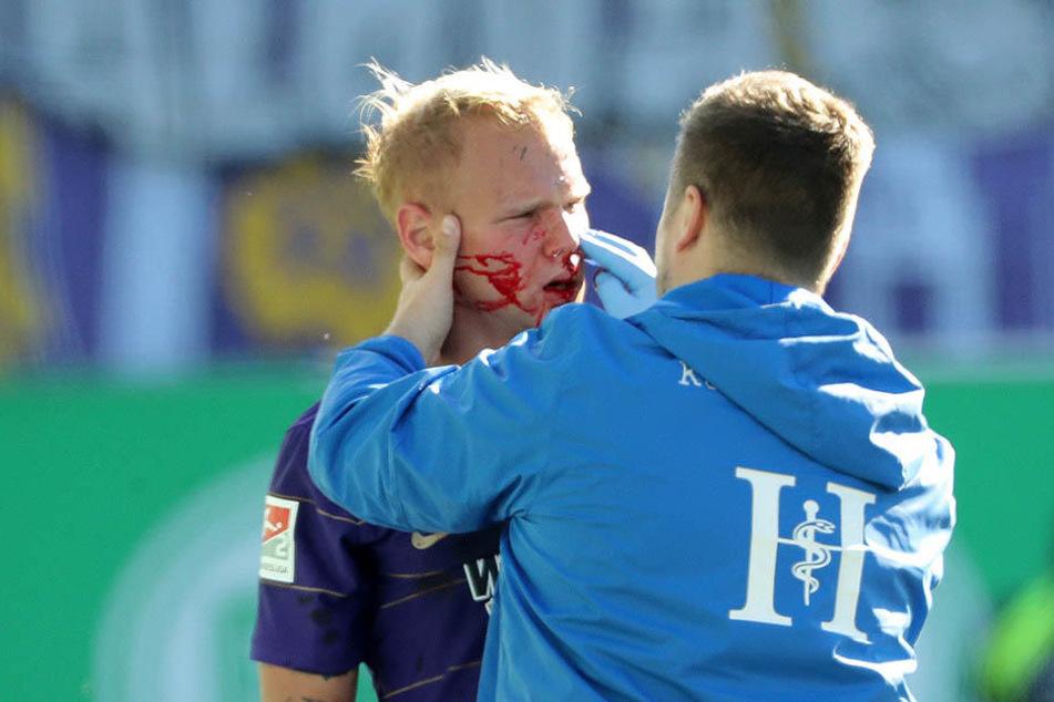 Das sah übel aus! Sören Bertram zog sich im Zweikampf einen Nasenbeinbruch zu. Er wird jetzt mit Maske spielen.