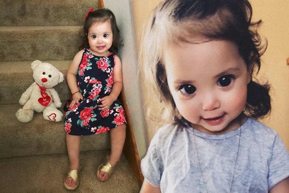 Mehlani leidet seit ihrer Geburt an einem seltenen Gendefekt, durch den ihre Augen größer als normal sind.