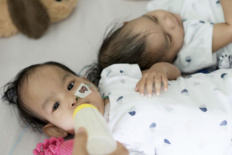 Nach Trennung: Siamesische Zwillinge kommen nicht voneinander los