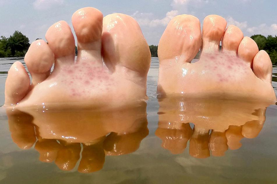 Nach Zerkarien-Befall kann es zu Hautjucken kommen!