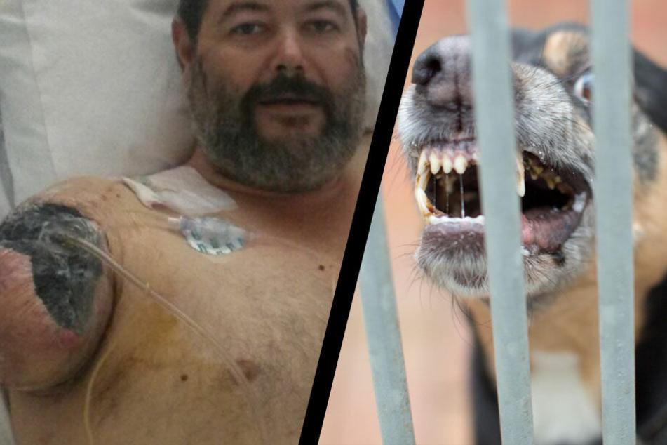 Brendan Clark liegt nach dem Hundeangriff derzeit im John Hunter Hospital.