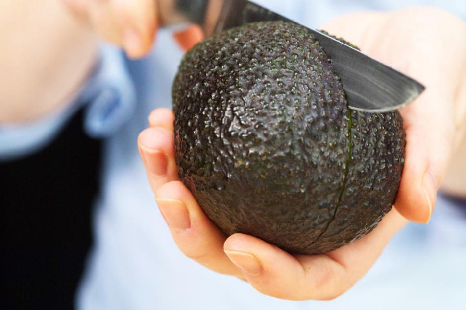 Deshalb warnt ein Chirurg jetzt alle Avocado-Fans!