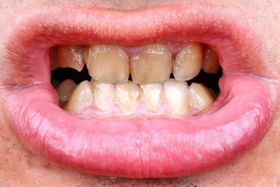 Bakterien auf den Zähnen bilden einen gelblichen Belag.