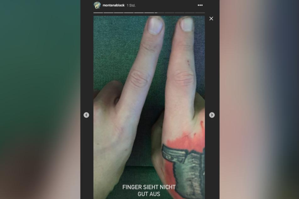 Der rechte Finger des YouTubers ist deutlich angeschwollen.