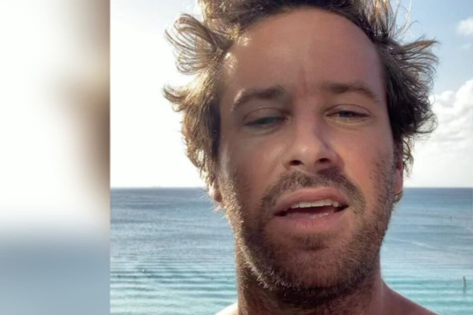 Amid cannibalism scandal, Armie Hammer faces dog abuse accusations