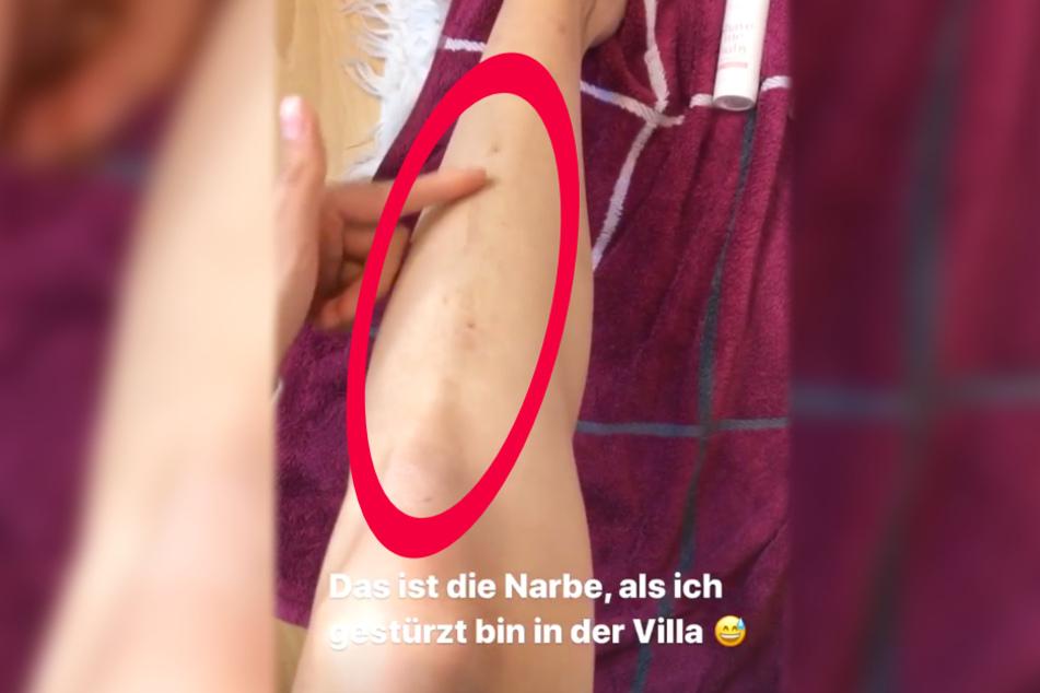 Model und Influencerin Larissa Neumann zeigte in einer Instagram-Story eine lange Narbe auf ihrem Schienbein.