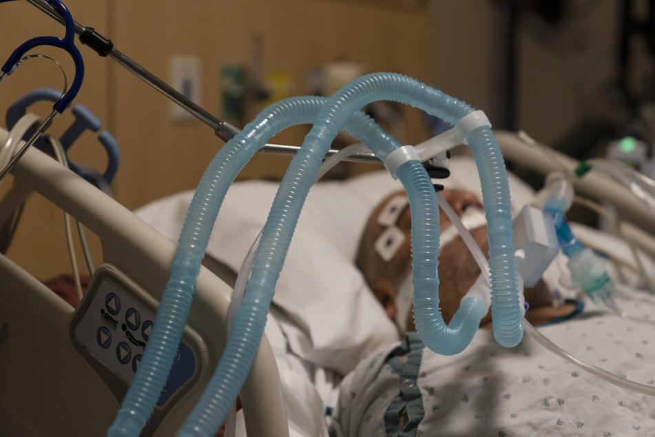 Beatmungsschläuche sind an einem an COVID-19 schwer erkrankten Patienten angebracht.
