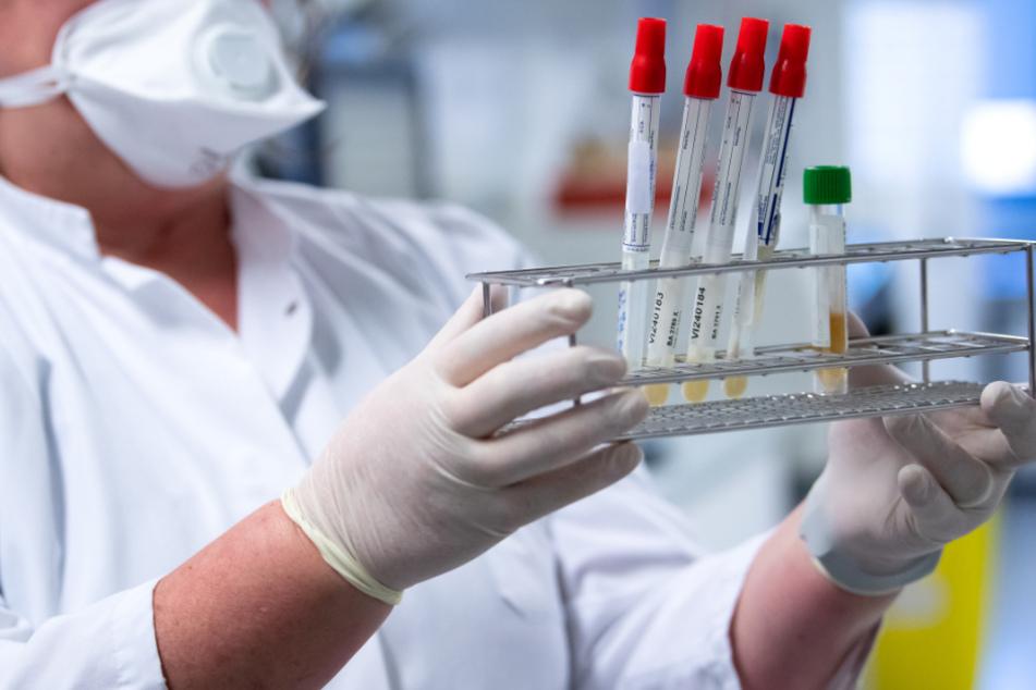 In Baden-Württemberg haben sich bislang 5.333 Menschen mit dem Coronavirus infiziert.