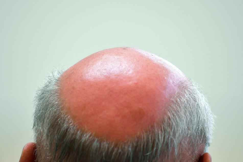 Kampf gegen Haarausfall: Forscher der Uni Köln machen Mut