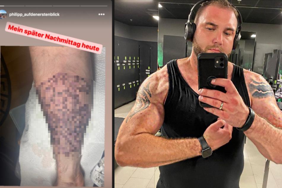 """Philipp von """"Hochzeit auf den ersten Blick"""": Sein neues Tattoo wirft Fragen auf"""