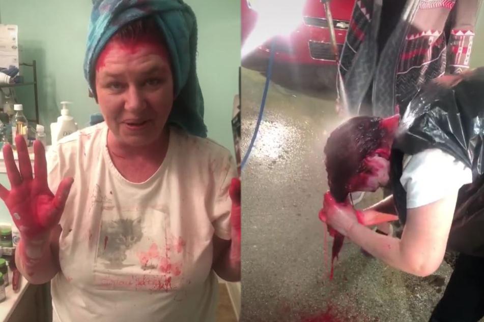 Die TikTokerin zeigte ihre roten Hände, ließ sich dann in einer Autowaschanlage von einem Hochdruckreiniger besprühen.