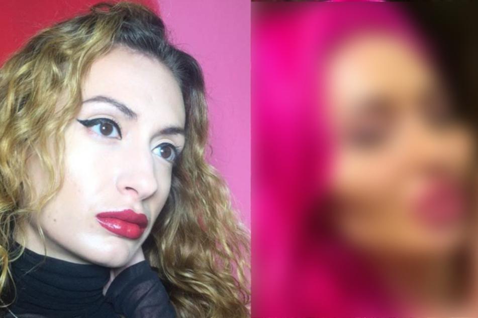 Süchtig nach Beauty-Eingriffen: Frau schockt mit Vorher-Nachher-Bild