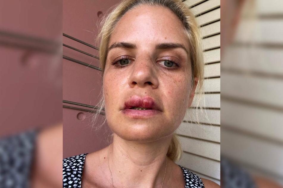 Susan Sideropoulos (40) hatte in ihrem Urlaub auf Zypern einen heftigen Fahrradunfall und musste an der Lippe genäht werden.