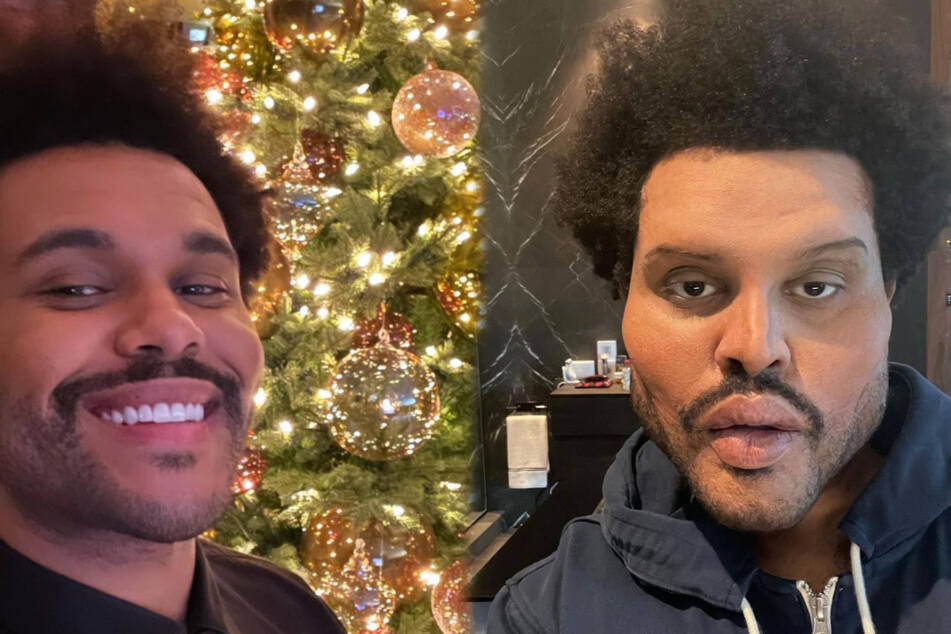 Before and after: a few weeks ago (l.) The Weeknd looked completely normal.