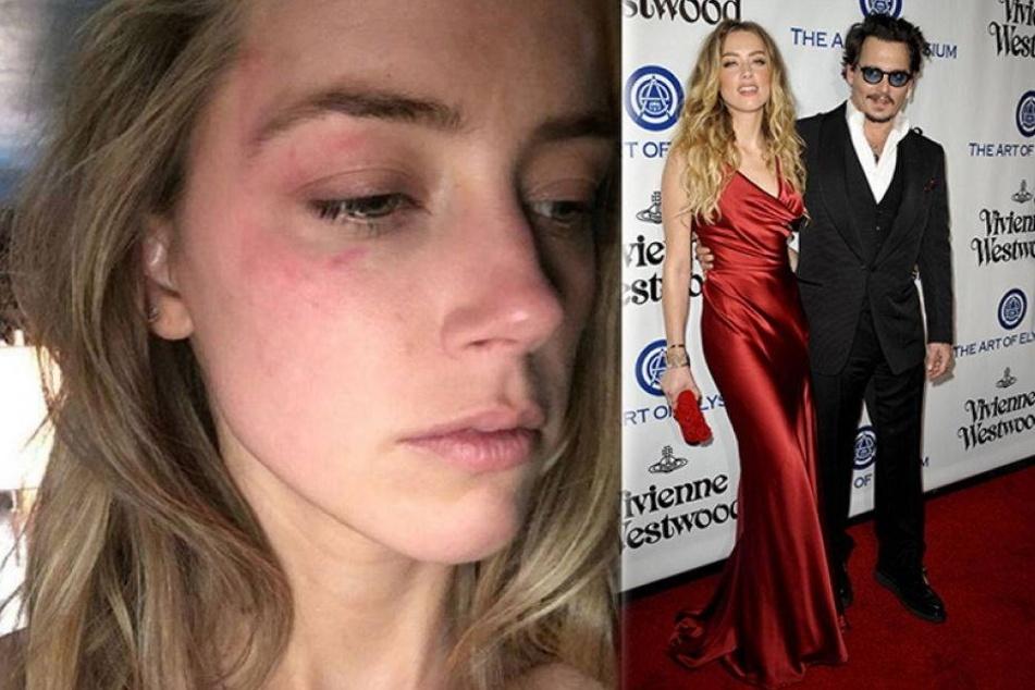 Am 21. Mai zeigte Amber Heard ihren Johnny an - später tauchten Bilder der verbeulten Blondine auf.