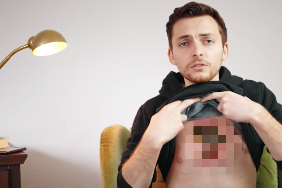 "Krebs ""frisst"" seine Haut auf: Todkranker YouTuber ""vergammelt"" bei lebendigem Leib"