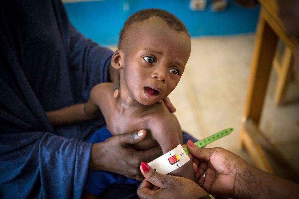 Im Gesundheitszentrum in Gao (Mali) wird der Armumfang eines 16 Monate alten und schwer unterernährten Jungen vermessen. (Archivbild)