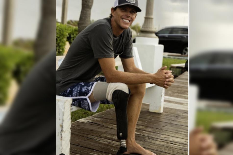 Mike trägt nun seit vielen Jahren eine Beinprothese, die ihn immer an das schreckliche Unglück erinnern wird.