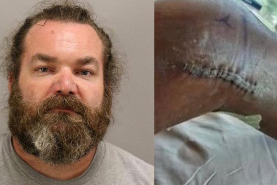 Vater schießt auf Freund der Tochter, weil ihm Hautfarbe nicht gefällt