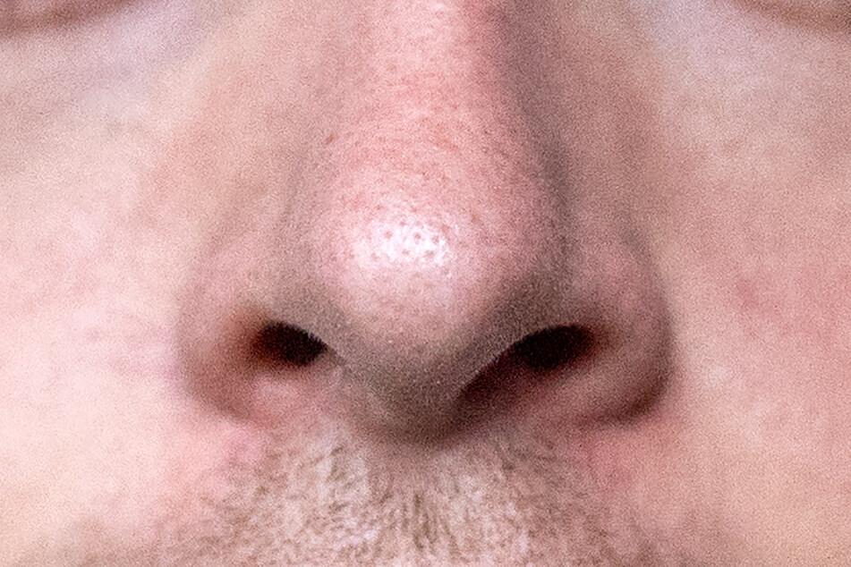 Wenn die Nase nach einer Corona-Infektion erstmal nichts mehr riecht, ist das kein Grund zur Panik. Nach einigen Monaten sollte der Geruchssinn zurückkehren.